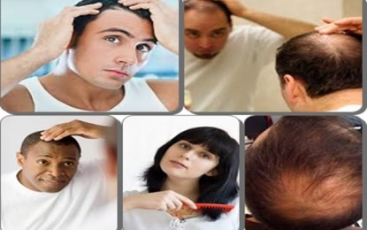Loss Hair Solutions