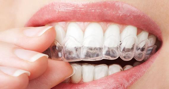 Insignia braces