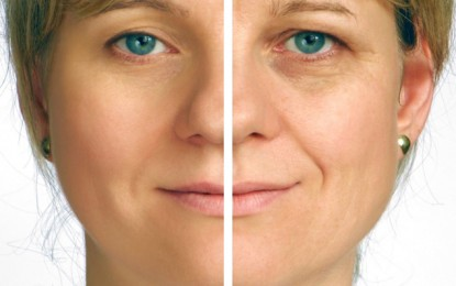 Using Laser Face Lift Treatment for More Beautiful Appearance