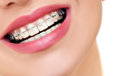 Few Benefits Of Invisible Braces That Can Change Your Life