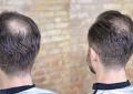 Check Reviews to Guarantee High-Quality Hair Transplants