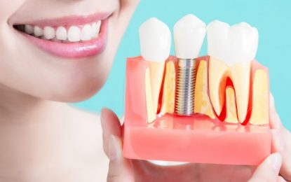 Top 4 Benefits of Dental Implants that You Should Know
