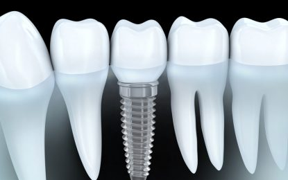 A Quick Overview Of Postoperative Care After Getting Dental Implants