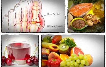 4 Great Natural Gout Remedies and Treatments