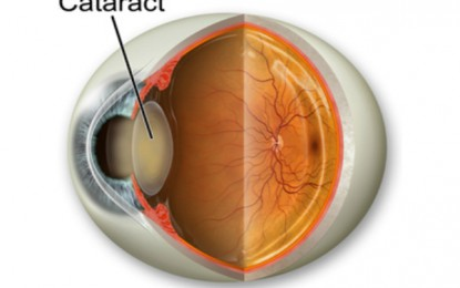 Some Essential Facts about Cataract Every One Must Know Before Going for Cataract Surgery