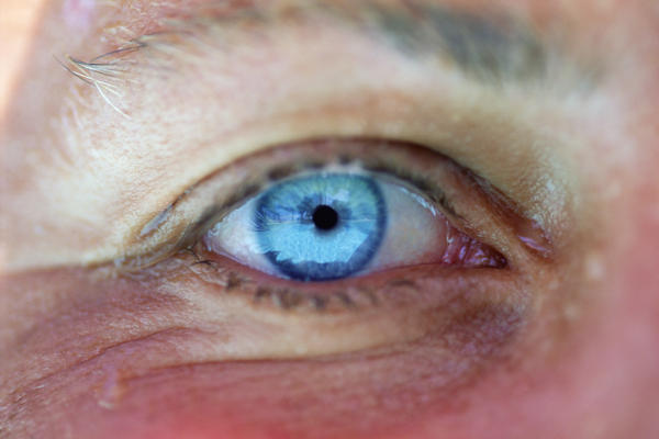 Causes and effects of cataract on a person