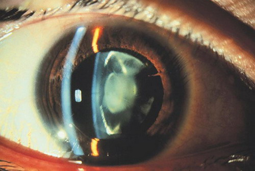 Radiation cataract