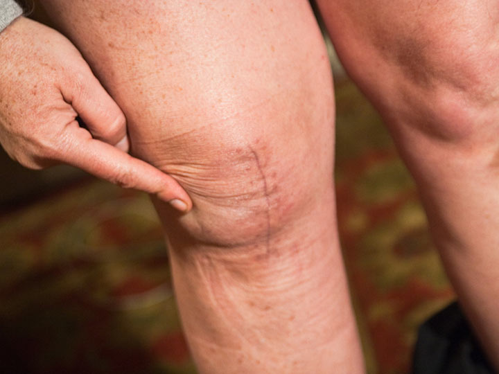 Dangers of Joint Replacement
