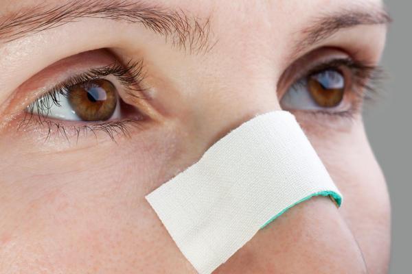 facial injury xperts