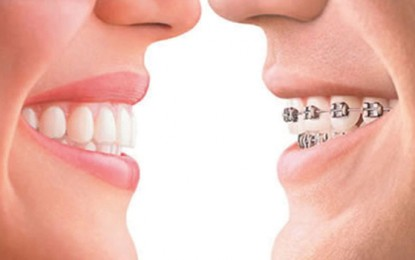 Insignia Braces Vs. Invisalign System – What is the Best Orthodontist Treatment for You