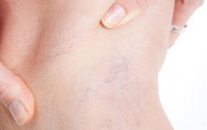 4 Dangers Associated with Varicose Veins that You Should Know About