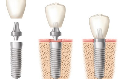 Find a Specialist to Handle your Dental Implants at Affordable Price