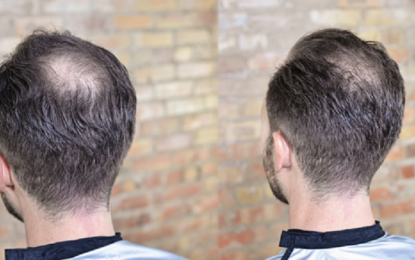 Check Reviews to Guarantee High-Quality Hair Transplants