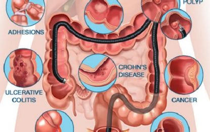 What Is A Colonoscopy? Find All Relevant Details Here!