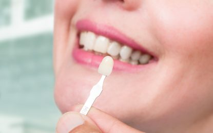 Everything You Wanted To Know About Dental Veneers!