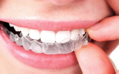 What are different Types of Invisalign Treatment