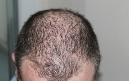 Insightful post about the basics of men losing their hair